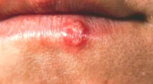 HIV Rash - Pictures, S...
