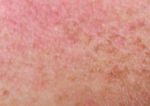Amoxil Rash Pictures