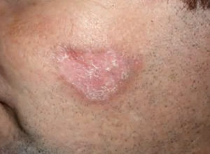 lupus rash photos