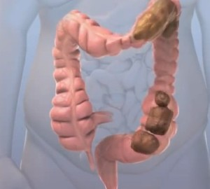 incomplete bowel movment pictures