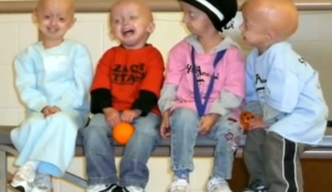 progeria children photos