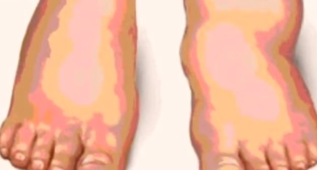 Charcot Foot Pictures Treatment Symptoms Causes
