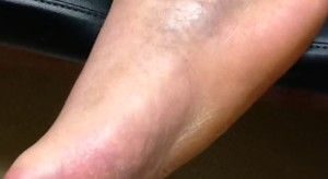 charcot foot pictures 2