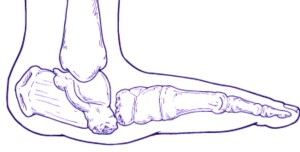 charcot foot pictures