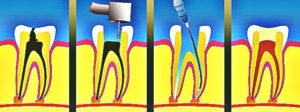 tooth-abscess-images