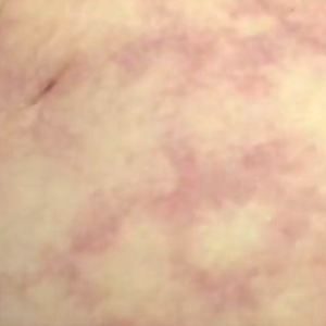 Mottled Skin - Pictures, Meaning, Causes, Symptoms, Treatment