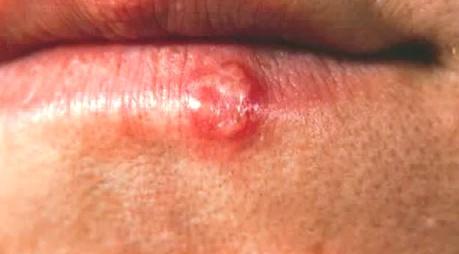 Hiv Rash Face Mouth