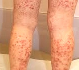 Henoch Schonlein Purpura - Pictures, Rash, Causes, Treatment